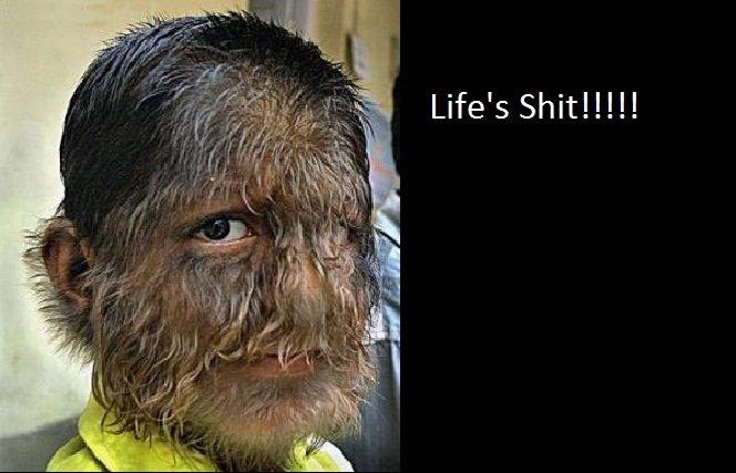 life's sometimes shit. isn't life a bastard!.. pedobears retard brother? Kid Hairy werewolf Hair shit Life bastard eew Disgusting horrid horrific