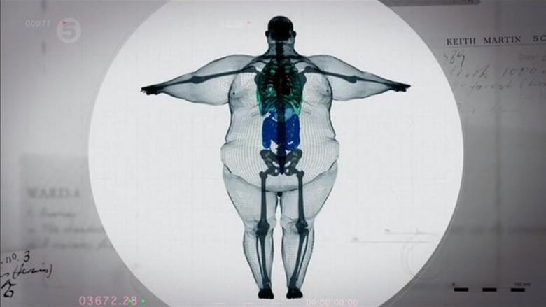 "X-Ray of 800 pound man. Must be from USA.. ""I'm big boned."" usa lol LMAO omg"