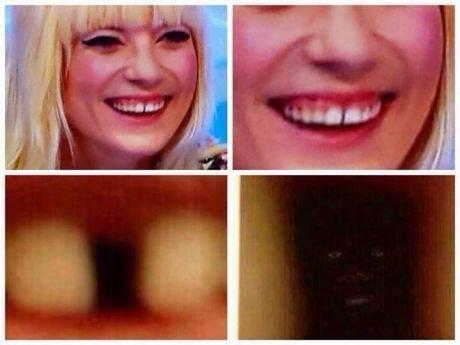 peek-a-boo. . Teeth Ugly funny nigger nice